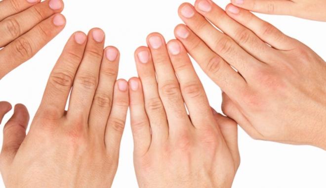 artrita reumatoida caut amant băile tușnad