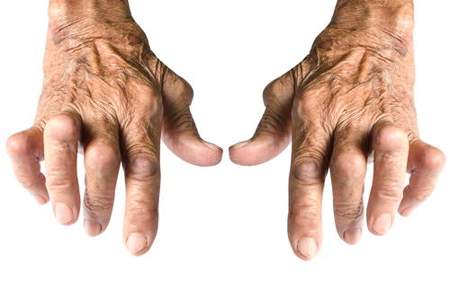 artrita reumatoida femei  care cauta barbat
